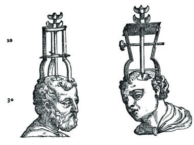 L0007377 Trephining instruments and apparatus, 1573